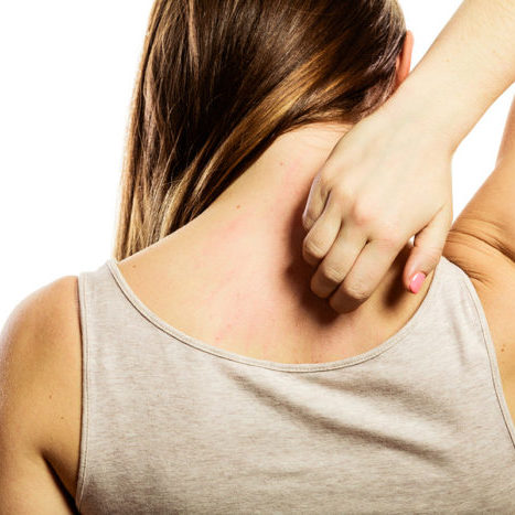 Health problem. Young woman scratching her itchy back with allergy rash isolated on white