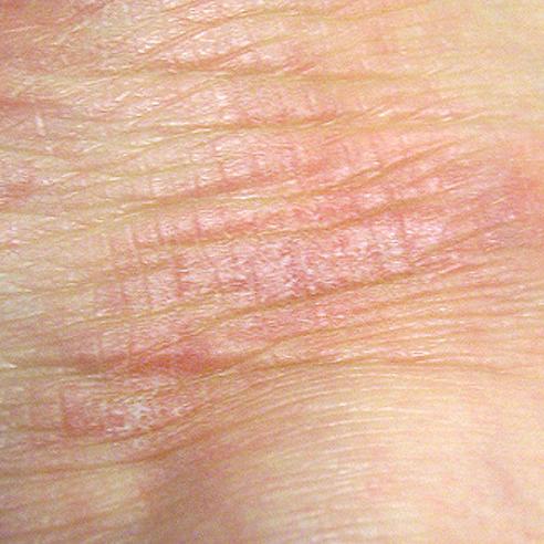 ruwe en schrale huid met kloven